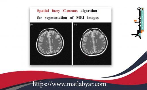 دانلود فیلم آموزشی الگوریتم SFCM در متلب + سورس کد متلب